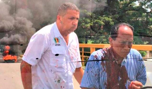 Ramos Allup denunció agresión a candidato a la gobernación de Apure